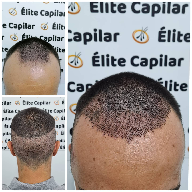 transplante de pelo benidorm